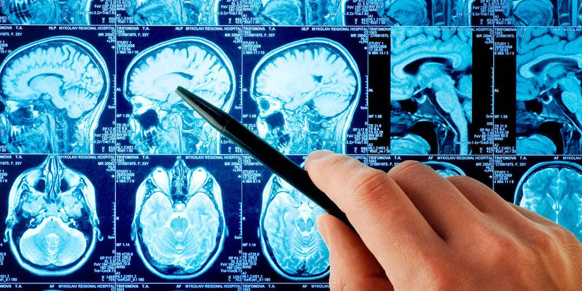 Гемопоэтические стволовые клетки эффективны для лечения инсульта