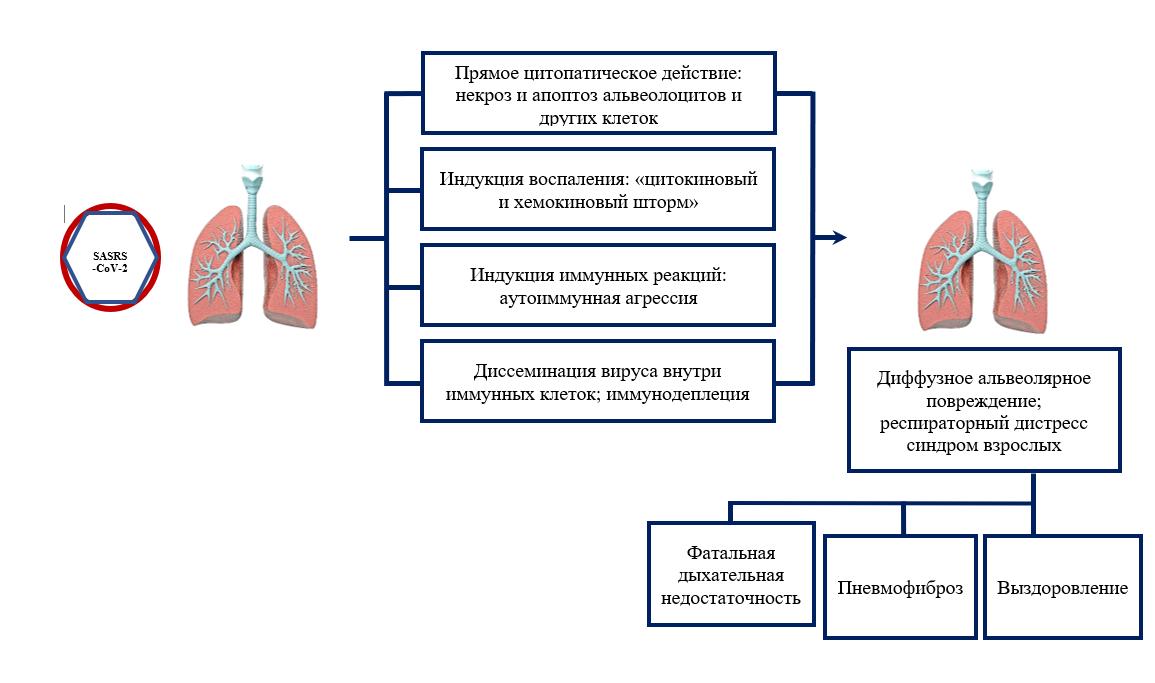 Пересадка мезенхимальных клеток  для лечения covid-19